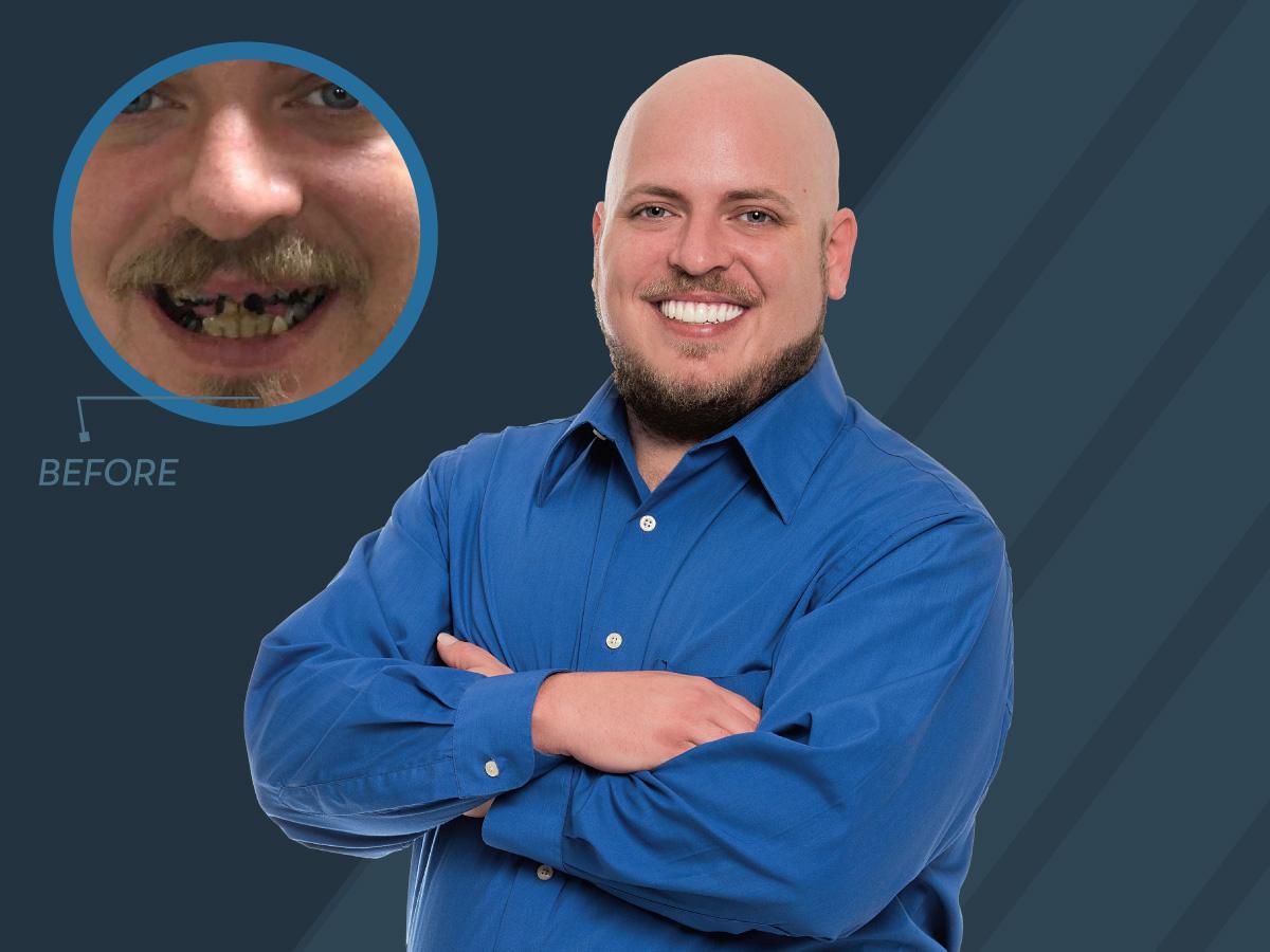 teeth in 48 hours