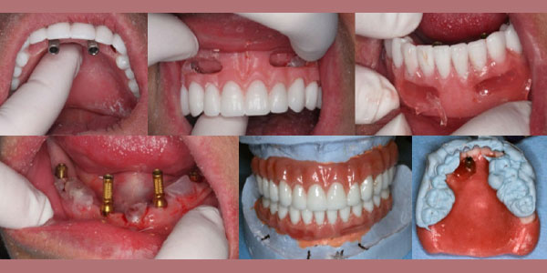 Converted denture