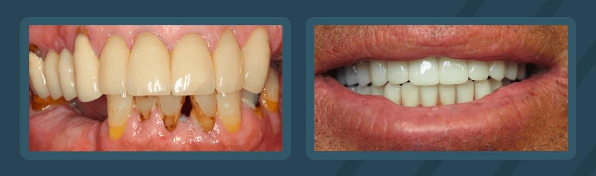 all on 6 teeth implants