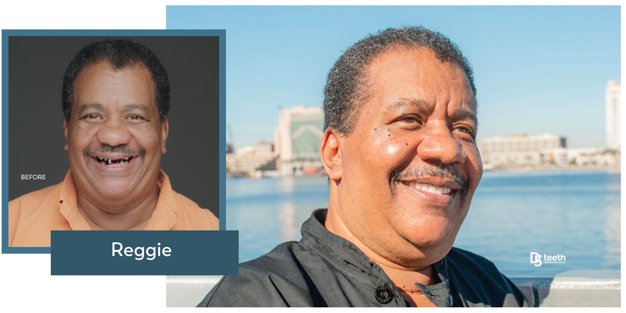 Reggie Before And After